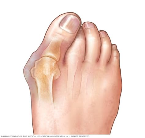 Bunions - Symptoms and causes - Mayo Clinic